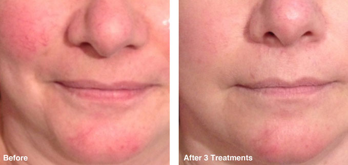 before-after-redness-reduction1