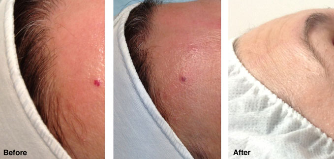 before-after-redness-reduction5