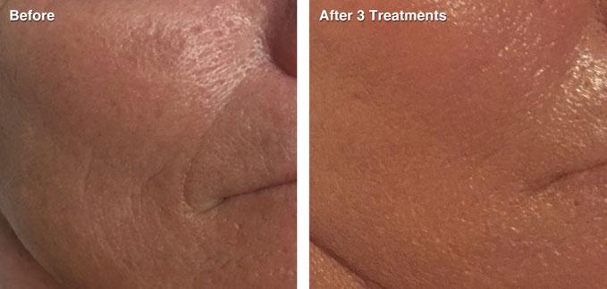 before-after-skin-rejuvenation2