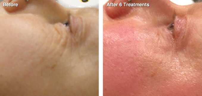 before-after-skin-tightening1